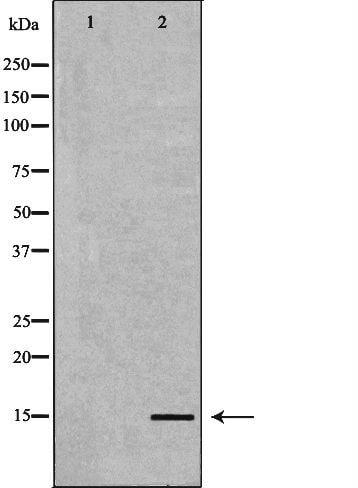 BNP Antibody in Western Blot (WB)