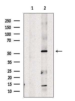 ENPP7 Antibody in Western Blot (WB)