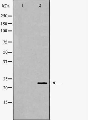 CRYBB2 Antibody in Western Blot (WB)