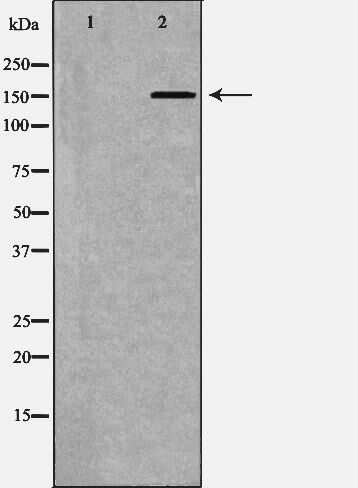 ATP7B Antibody in Western Blot (WB)
