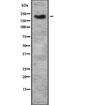 TRPM7 Antibody in Western Blot (WB)