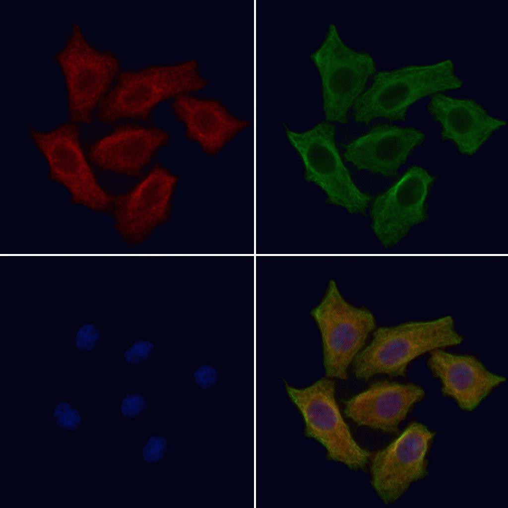 SLC39A8 Antibody in Immunofluorescence (IF)