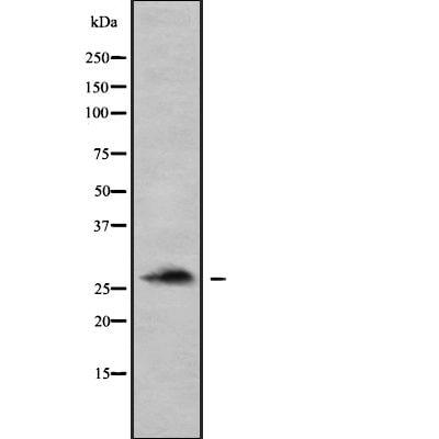 Calpain S1/S2 Antibody in Western Blot (WB)