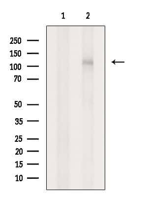 INPP4A Antibody in Western Blot (WB)