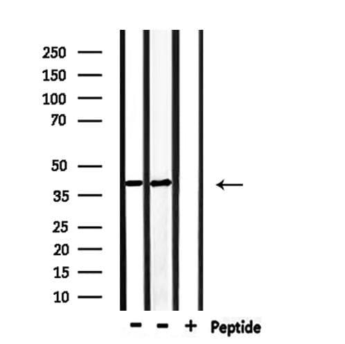 p39 Antibody in Western Blot (WB)
