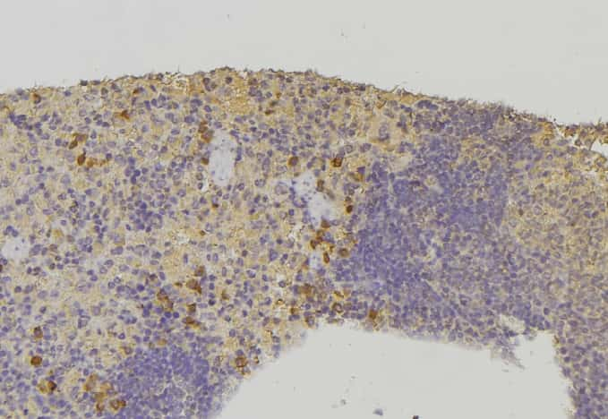 HSPA6 Antibody in Immunohistochemistry (Paraffin) (IHC (P))