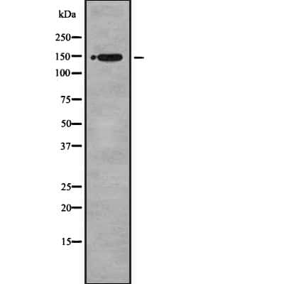 BRCAA1 Antibody in Western Blot (WB)