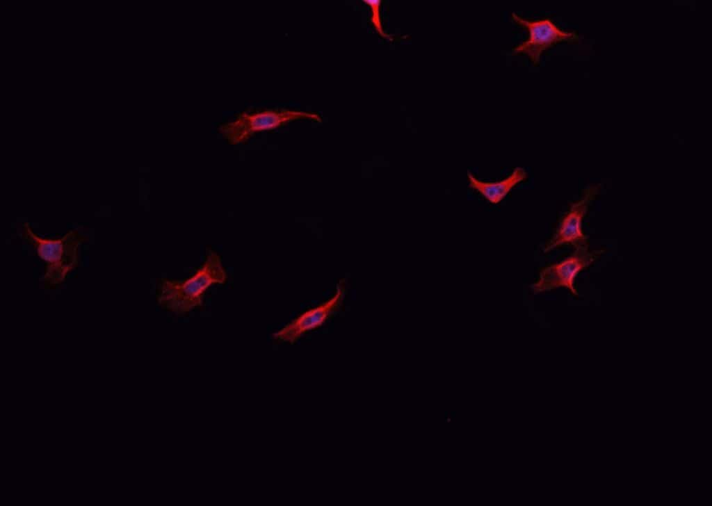 NOX1 Antibody in Immunofluorescence (IF)