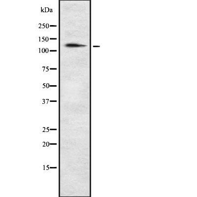 POM121 Antibody in Western Blot (WB)