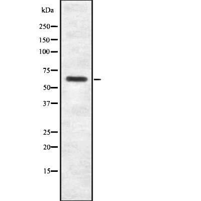 SP2 Antibody in Western Blot (WB)