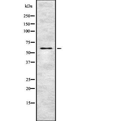 Phospho-OXSR1 (Thr185) Antibody in Western Blot (WB)