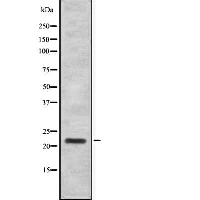 IFNA16 Antibody in Western Blot (WB)