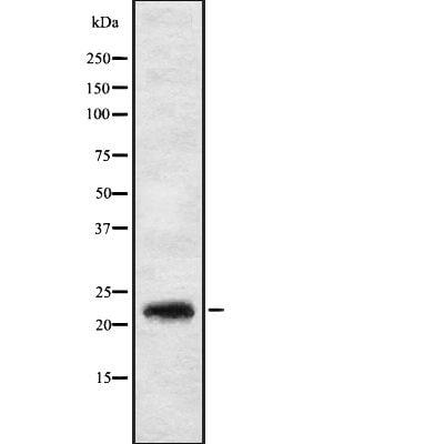 IL17C Antibody in Western Blot (WB)