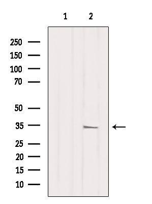 MRPL2 Antibody in Western Blot (WB)