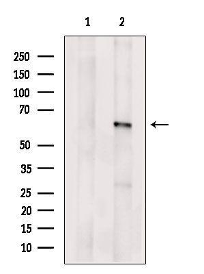 ACBD5 Antibody in Western Blot (WB)