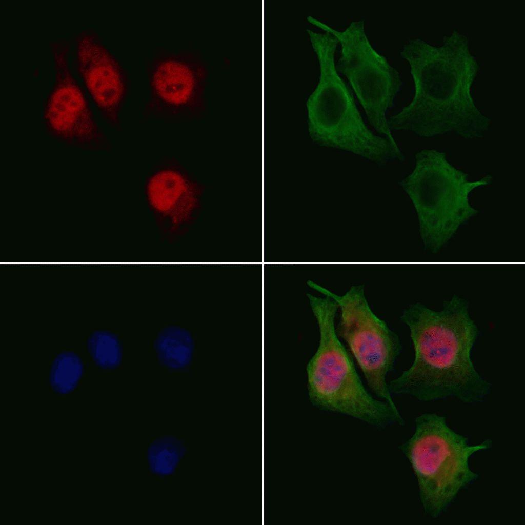 RECQ4 Antibody in Immunocytochemistry (ICC/IF)