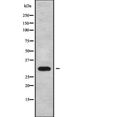 CABP4 Antibody in Western Blot (WB)