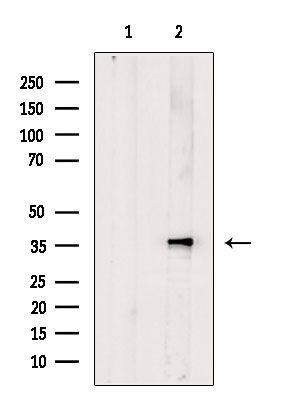 Calponin 3 Antibody in Western Blot (WB)