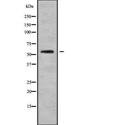 CHST3 Antibody in Western Blot (WB)