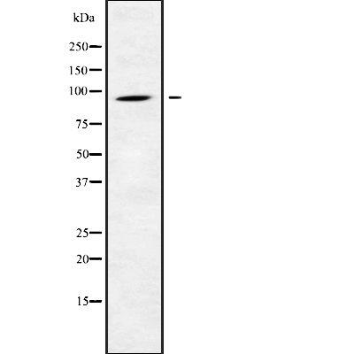 CATSPER1 Antibody in Western Blot (WB)