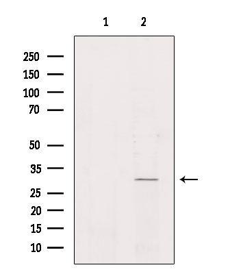 NKX6-2 Antibody in Western Blot (WB)