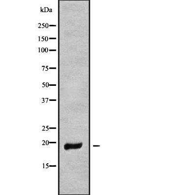 MT-ND6 Antibody in Western Blot (WB)