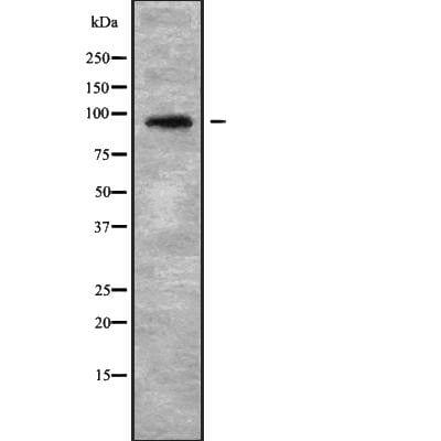 NOP14 Antibody in Western Blot (WB)
