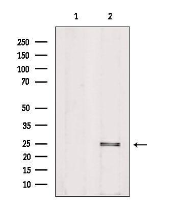 PIGF Antibody in Western Blot (WB)