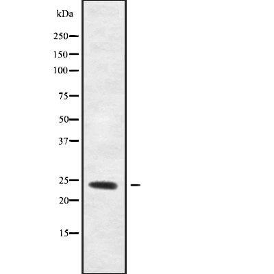 Rho Pan Antibody in Western Blot (WB)