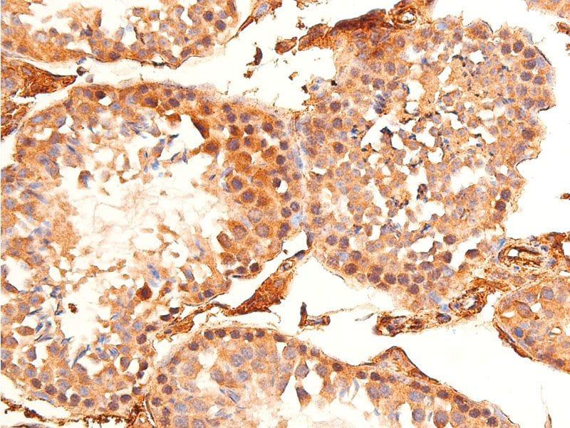 Phospho-Chk1 (Ser296) Antibody in Immunohistochemistry (Paraffin) (IHC (P))