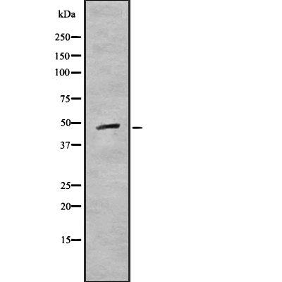 CK1 gamma-1 Antibody in Western Blot (WB)