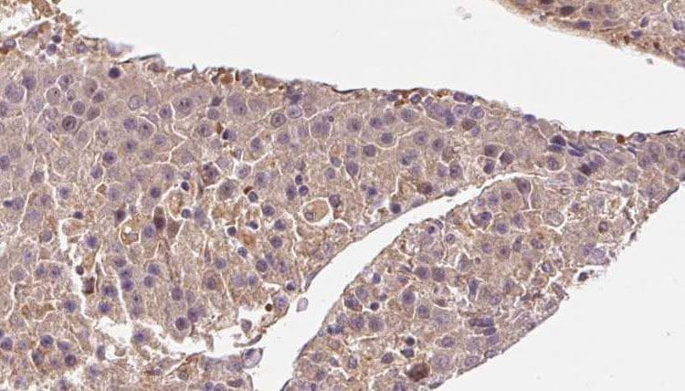 ARL13B Antibody in Immunohistochemistry (Paraffin) (IHC (P))