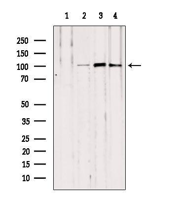 NOD2 Antibody in Western Blot (WB)