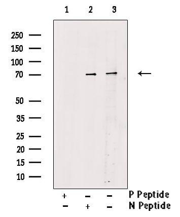 Phospho-RIP2 (Ser176) Antibody in Western Blot (WB)