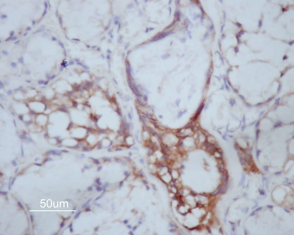 MMP14 Antibody in Immunohistochemistry (Paraffin) (IHC (P))