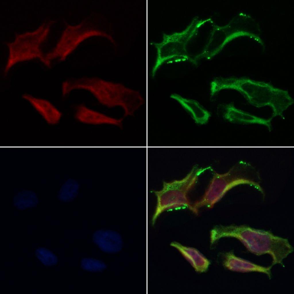 Sodium Channel Pan Antibody in Immunofluorescence (IF)