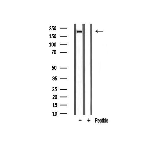 Sodium Channel Pan Antibody in Western Blot (WB)