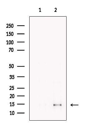 CDK2AP2 Antibody in Western Blot (WB)