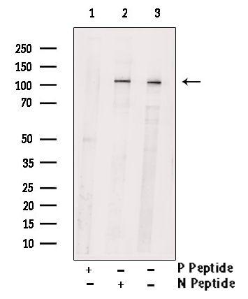 Phospho-PKD2 (Ser812) Antibody in Western Blot (WB)