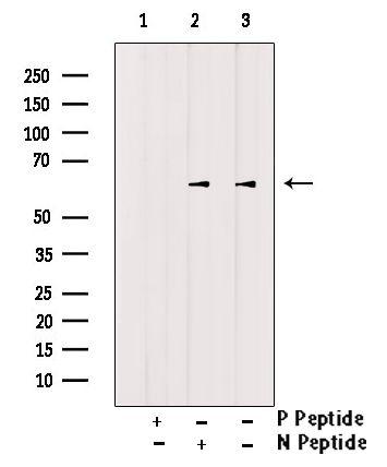 Phospho-CTDSPL2 (Ser104) Antibody in Western Blot (WB)