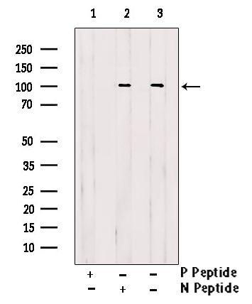 Phospho-EEF2K (Ser366) Antibody in Western Blot (WB)