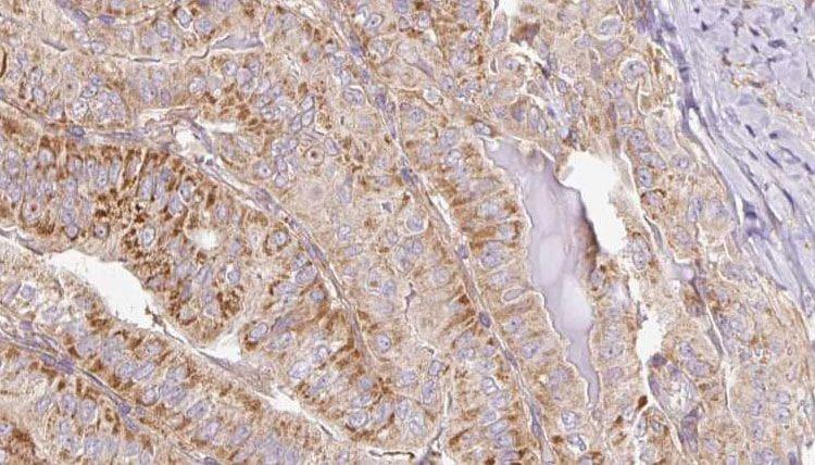 Phospho-PAK1/PAK2 (Ser199, Ser204, Ser192, Ser197) Antibody in Immunohistochemistry (Paraffin) (IHC (P))