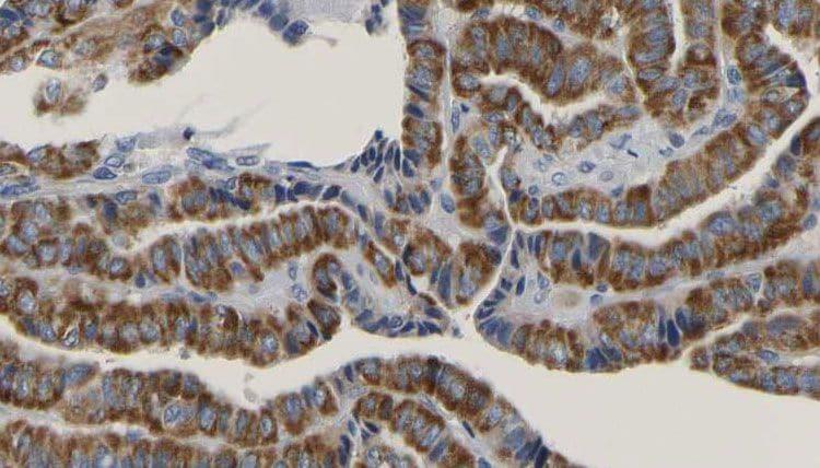 Phospho-RAC1 (Ser71) Antibody in Immunohistochemistry (Paraffin) (IHC (P))