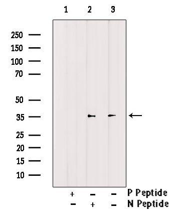 Phospho-CDK6 (Tyr13) Antibody in Western Blot (WB)