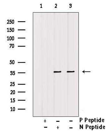 Phospho-CDK6 (Tyr292) Antibody in Western Blot (WB)