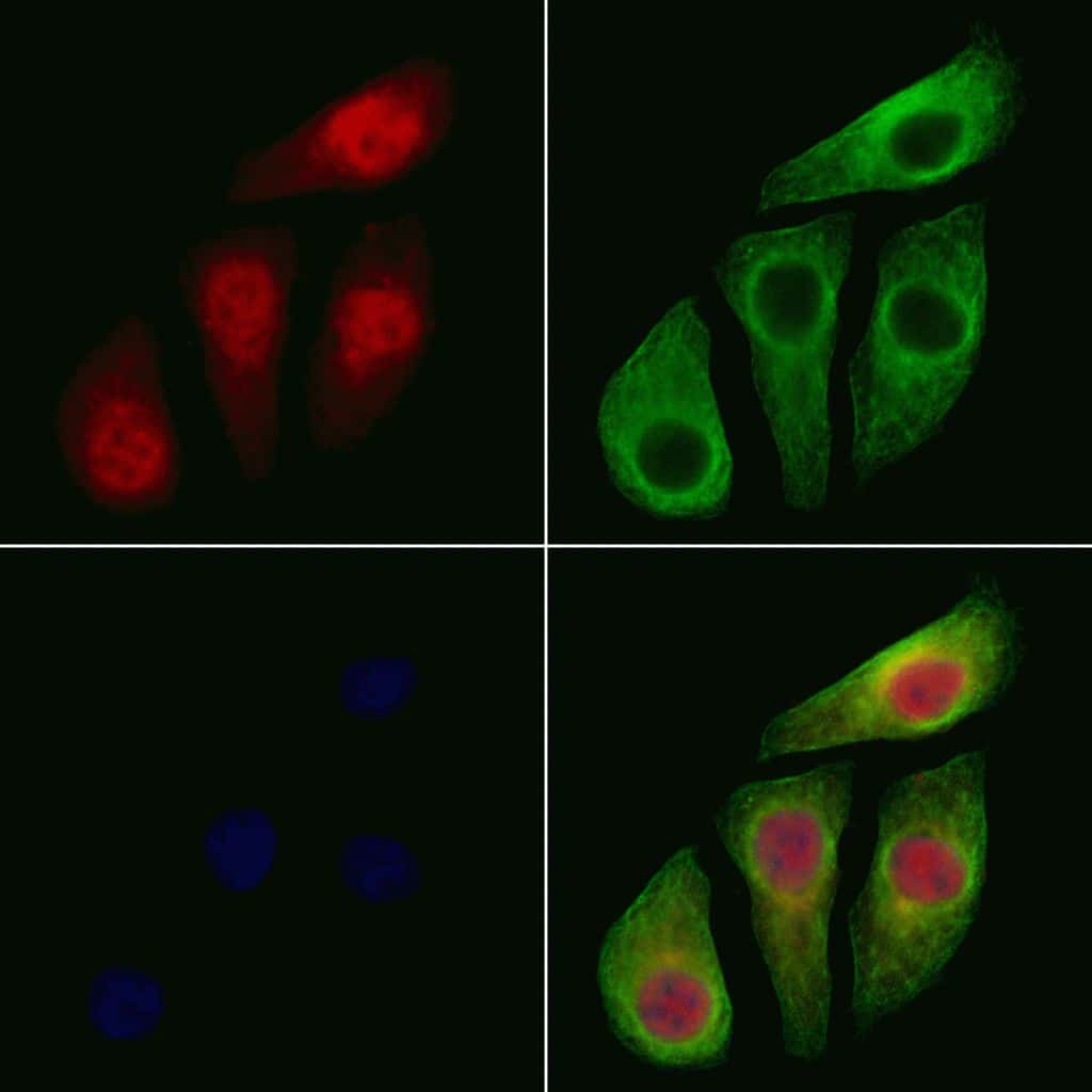 Phospho-IKK alpha/beta (Ser176, Ser177) Antibody in Immunofluorescence (IF)