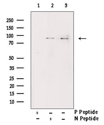 Phospho-IKK alpha/beta (Ser176, Ser177) Antibody in Western Blot (WB)