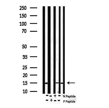 Phospho-Survivin (Thr117) Antibody in Western Blot (WB)