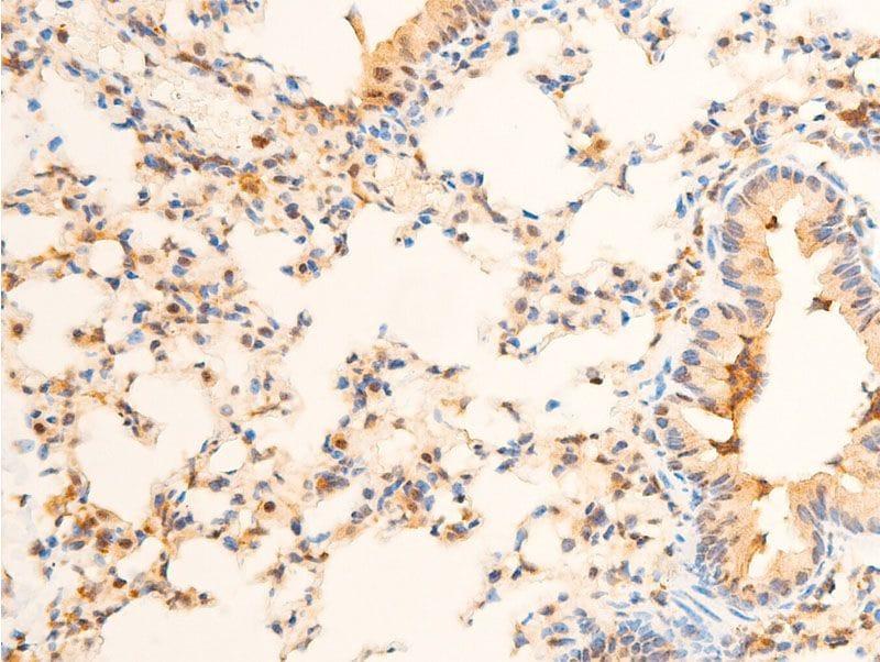 Phospho-PDPK1 (Ser241) Antibody in Immunohistochemistry (Paraffin) (IHC (P))