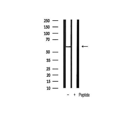 Phospho-PDPK1 (Ser241) Antibody in Western Blot (WB)